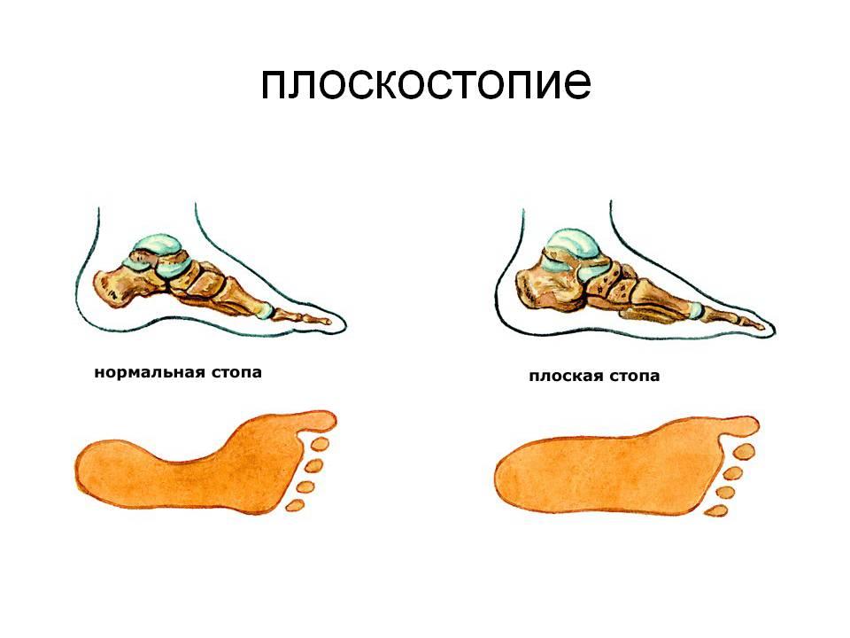 Лікування плоскостопості та викривлення стопи