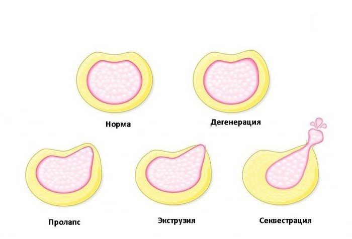 Протрузія міжхребцевого диска - лікування